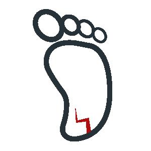 Topuk Çatlakları Tedavisi