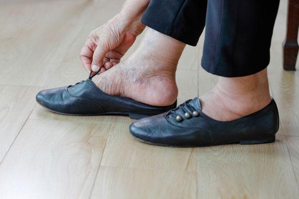 engelli bireyler de ayak bakımı