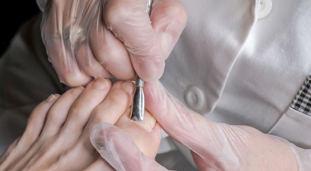 tırnak mantarı nasıl tedavi edilir